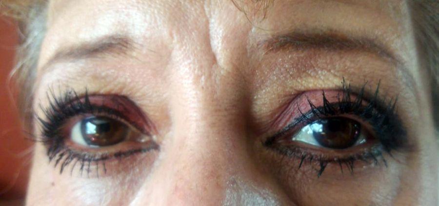 80% de casos de ceguera son prevenibles